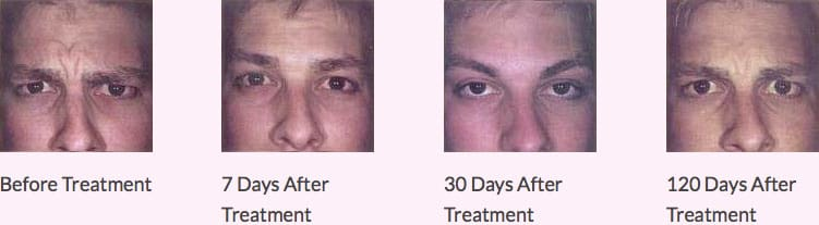 Wrinkle Treatment Poole