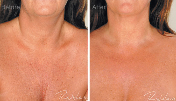 Before and After with Mesotherapy