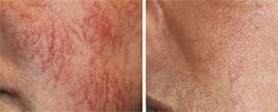 Red vein removal in Bournemouth and Poole