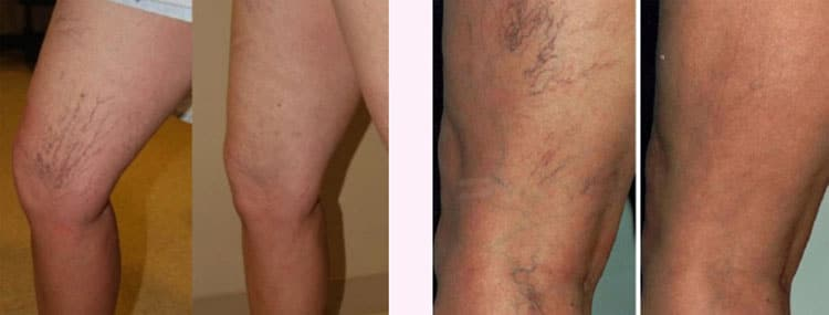 Thread Veins before and after