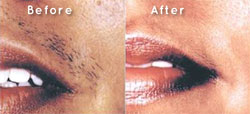 IPL hair removal Poole