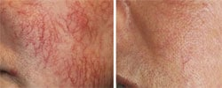 Red vein removal with IPL