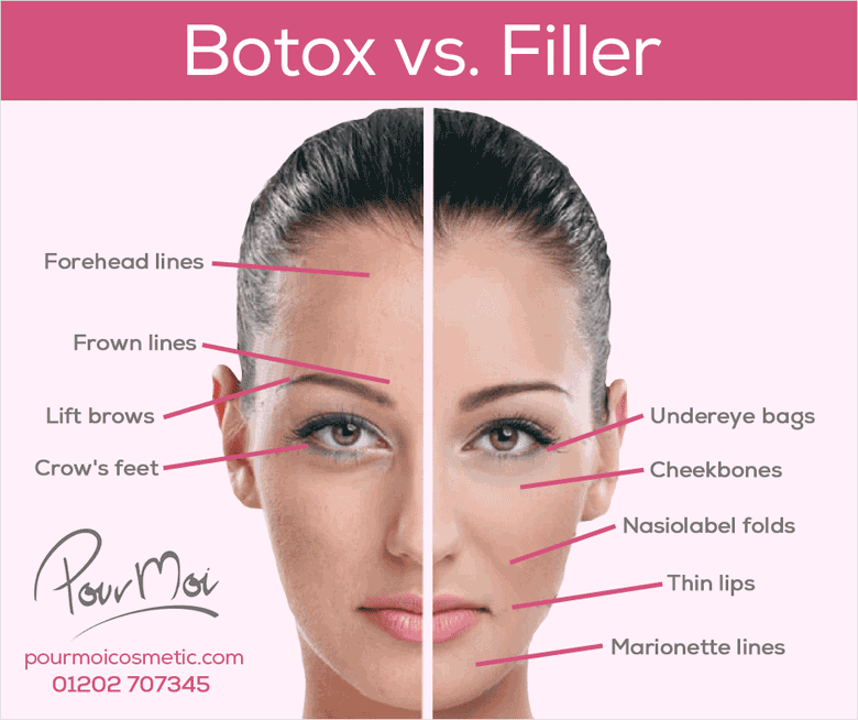 Botox Fillers Difference