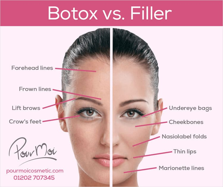 The Differences Between Botox and Fillers: Not Sure What to