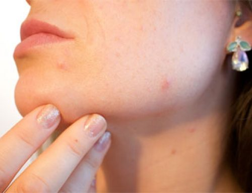 3 Tips on How to Deal with Embarrassing Adult Acne